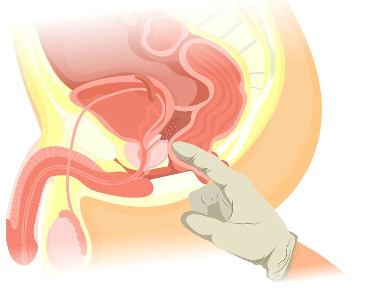 Gloved finger touching prostate in anus